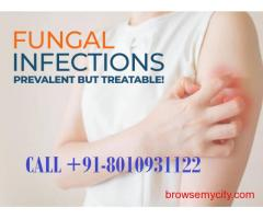    PH:(+91)-8010931122    Fungal Infection Treatment in Dwarka Sector 21