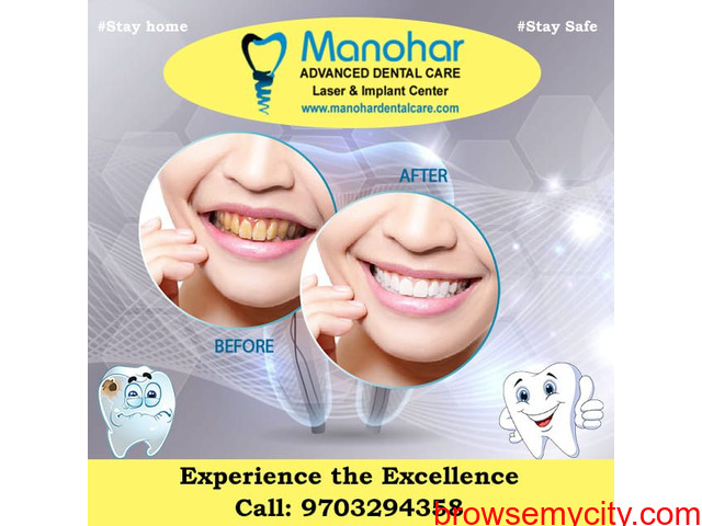 best implant clinic in vizag - 1/1