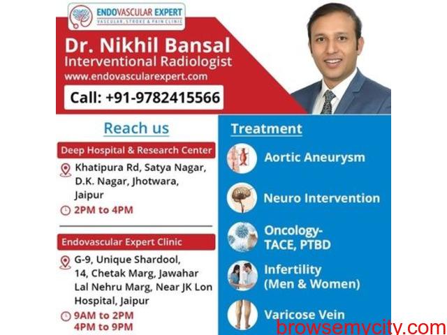 Get varicosities treatment by varicose veins doctor in Jaipur - 1/2
