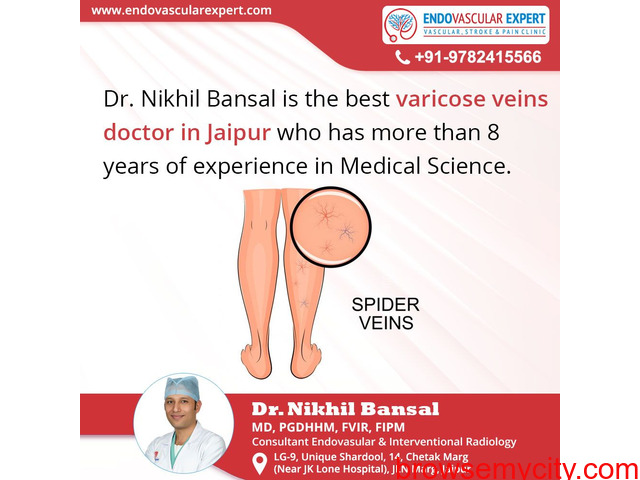 Non-Surgical treatment provided by Varicose veins Doctor in Jaipur - 1/1