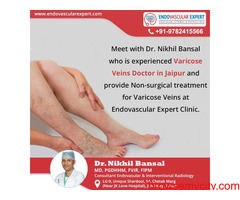 Varicose Veins doctor in Jaipur provides the best consultation and treatment.