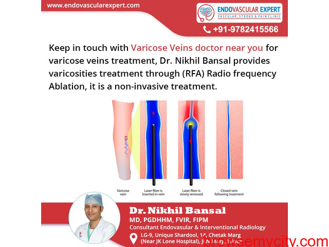 Varicose veins doctor near you for varicosities treatment. - 1/1