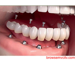 Manohar dental care best dental doctor in vizag Manohar dental care