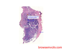 Are you looking for the histopathology digital slides?