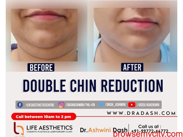 Double Chin Reduction Surgery   Dr. Ashwini Dash - Indore - 1/1