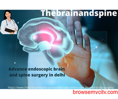 Advance endoscopic brain and spine surgery in delhi