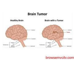 Best Surgery For Brain Tumor in delhi   India