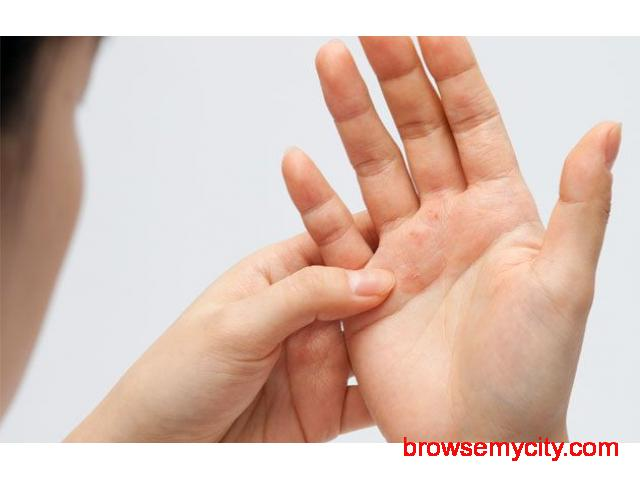 Symptoms And Causes Of Psoriasis - Prevent Psoriasis From Spreading - 1/1