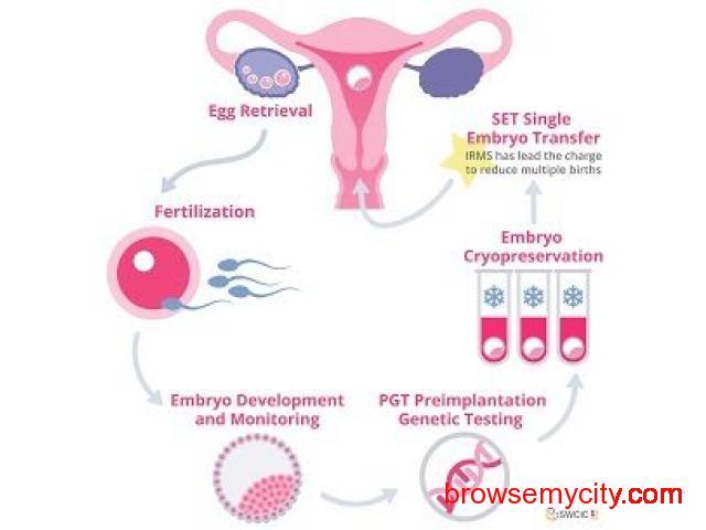 IVF Cost - 1/1