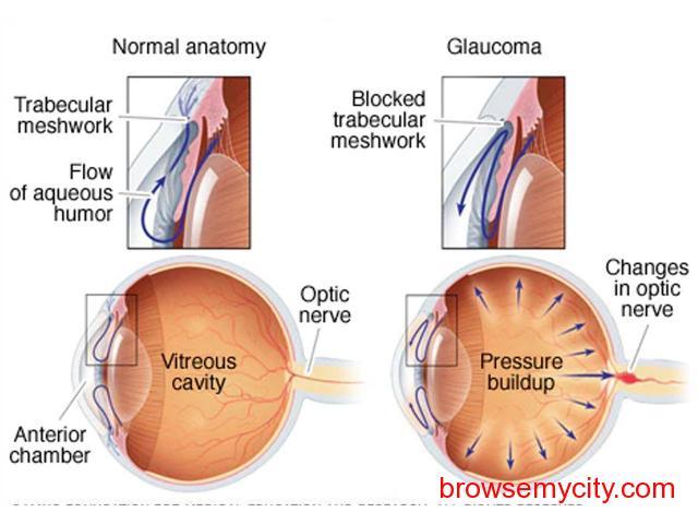 Glaucoma Specialist in Bangalore - 1/1