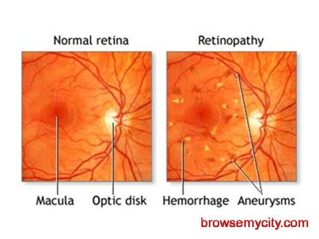 Retina Specialist in Bangalore - 1/1