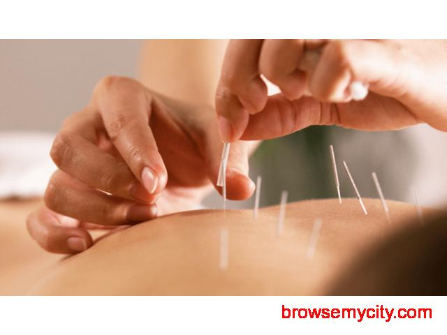 Find the Best Acupuncture Treatment in Bangalore - 1/1
