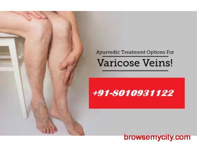 CALL[ [ 801-093-1122 ] ] | Best doctors for varicose veins in Jasola Vihar,Delhi - 1/1